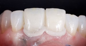 Provisional try in...not enough chroma at gingival